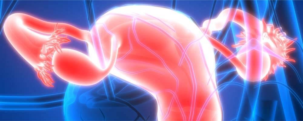 cancer des ovaires